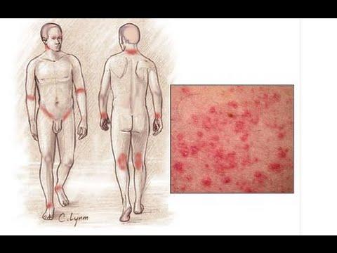 Лавровый лист избавит от дерматита