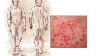 видео Как проявляется и лечится аллергический дерматит?