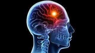 Udar mózgu – 8 znaków ostrzegawczych