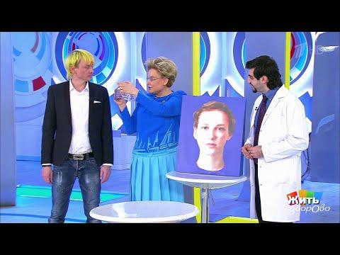 Жить здорово! Гайморит - воспаление пазух(03.05.2018)