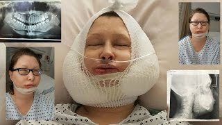 Jaw Surgery Day Vlog + Recovery day 1-30