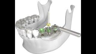 Безопасная имплантация зубов стоматология Астана PRESTIGE Dental Clinic(Впервые в Астане!!! Только для наших пациентов мы можем предложить безопасную установку имплантов с испол..., 2015-04-12T15:59:09.000Z)