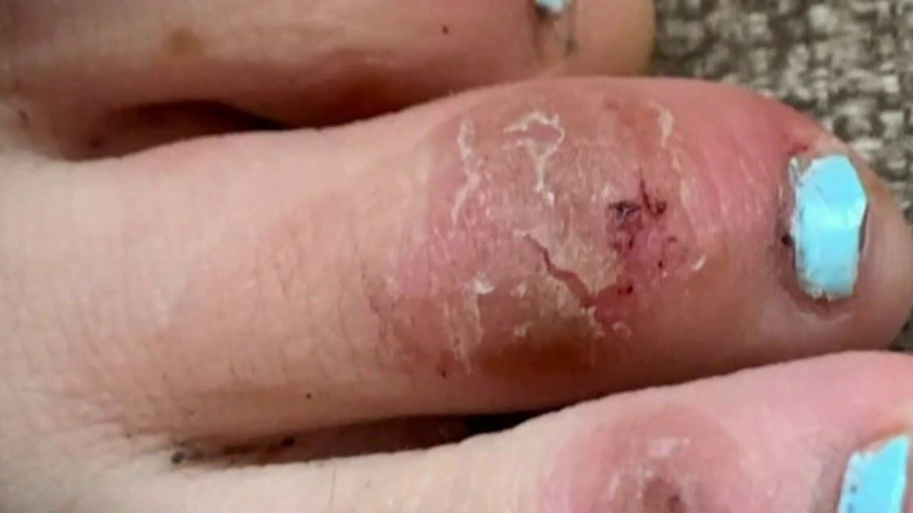 COVID Toes Among Wide Variety of Updated Symptoms ...