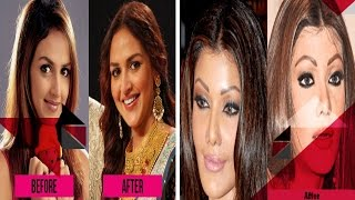 Page 3 - Biggest Cosmetic Surgery Disasters, Bollywood