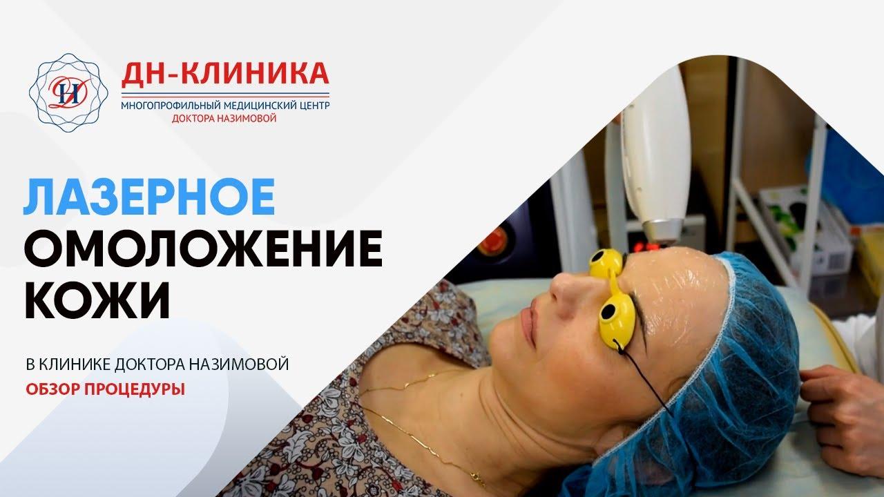 ЛАЗЕРНОЕ ОМОЛОЖЕНИЕ КОЖИ. Косметология. ДН-Клиника. Доктор Назимова.