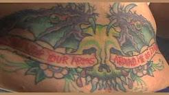 Orlando Laser Tattoo Removal