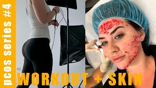 FIGHTING PCOS ep4: Casual day in the life vlog (leg workout + skin needling)