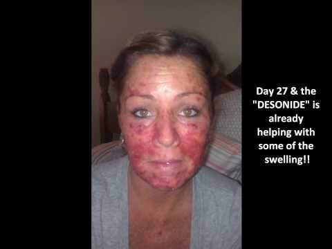 Skin Cancer.... My Vlog #14 EFUDEX UPDATE!!!  Pic
