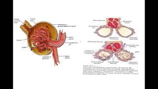 Glomerulonefritis.