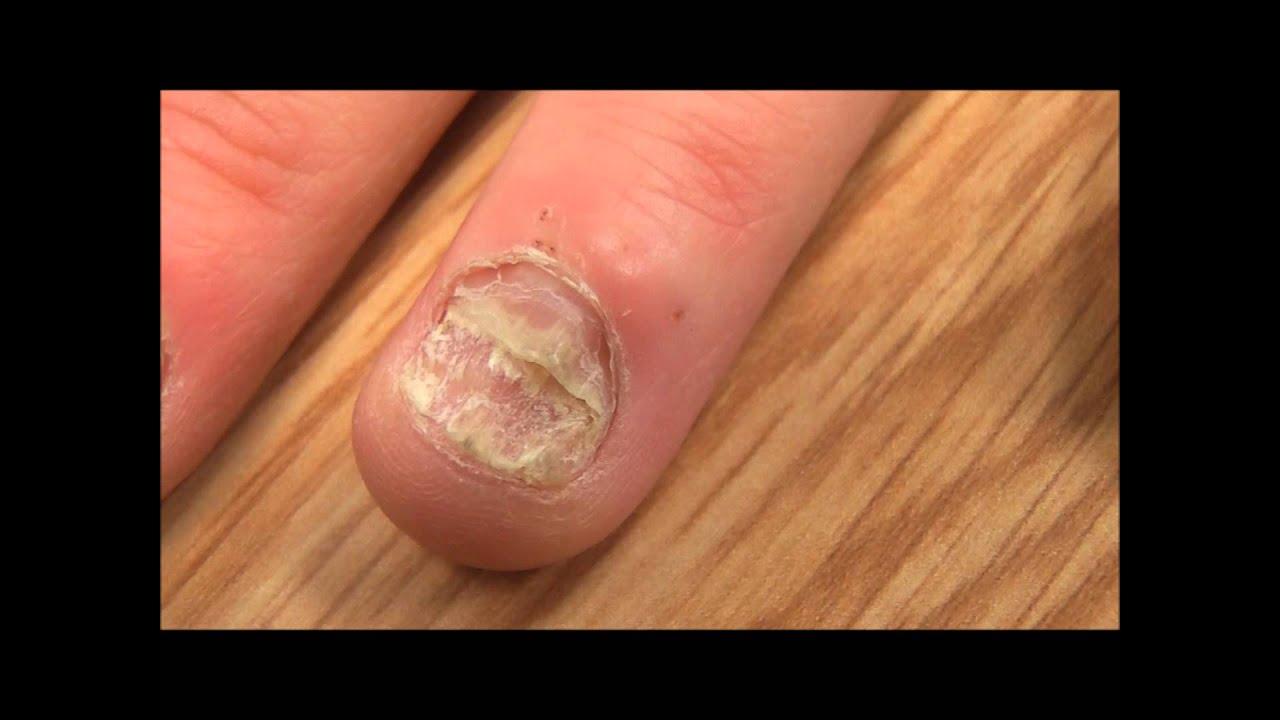 Грибок на ногтях разрушение ногтях