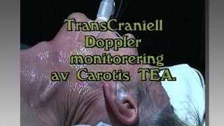 Transcraniell doppler monitorering av Carotis TEA - Neurokirurgi