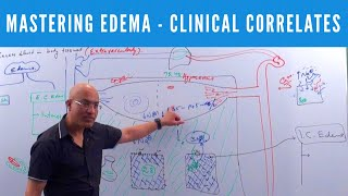 Mastering Edema - Types, Causes, Symptoms & Treatment