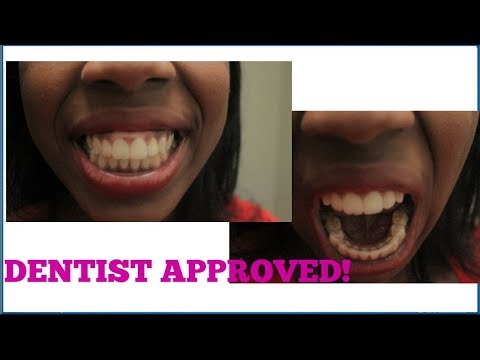 HOW I CLEAN MY PERMANENT RETAINERS NO CAVITIES AND DENTIST APPROVED!