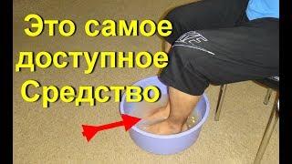 видео Ванночки для ног в домашних условиях с перекисью, солью и содой