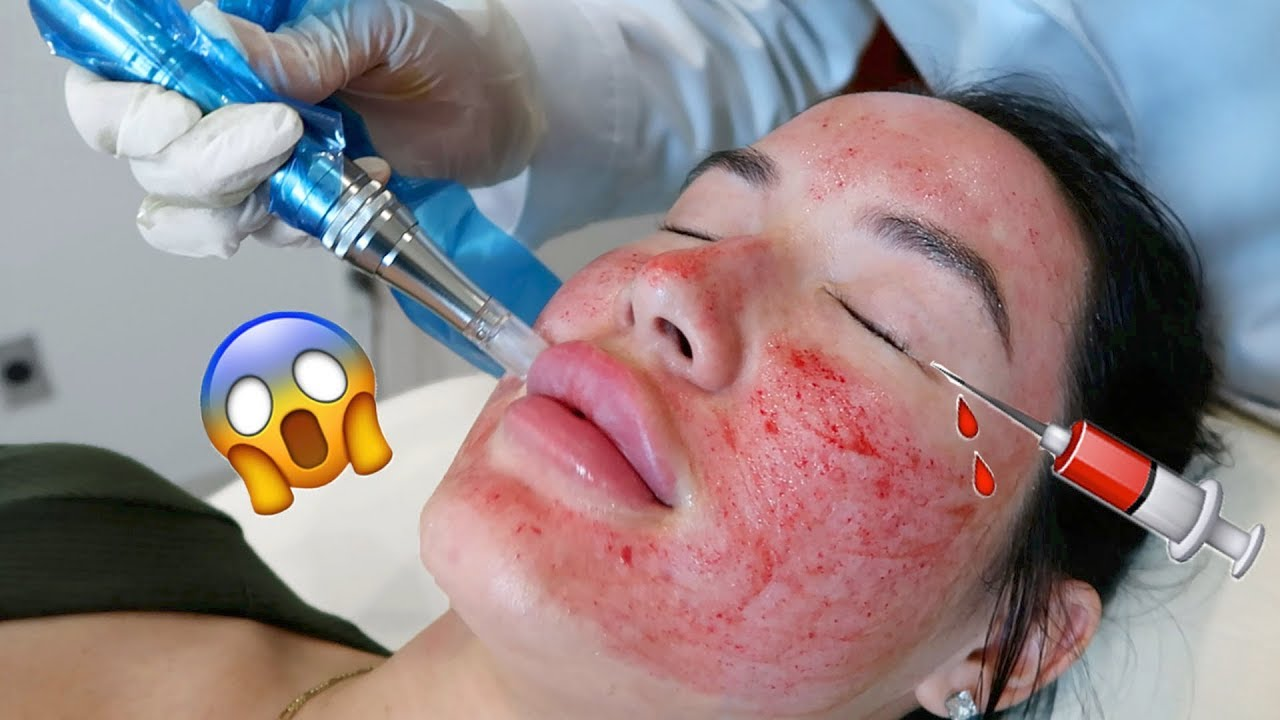 MICRONEEDLING, AFTERCARE, DAILY UPDATES & HOW I CLEARED MY SKIN OF CYSTIC  ACNE + RESULTS