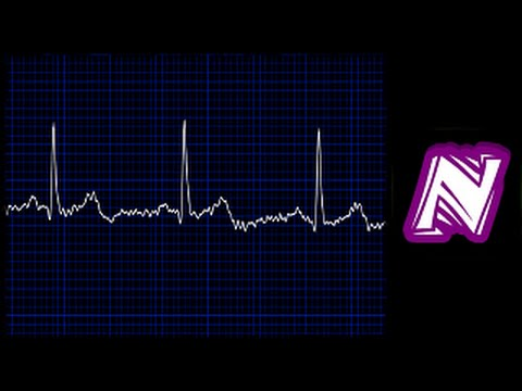 Heart monitor sound / Sonido de monitor cardiaco / Ekg sound