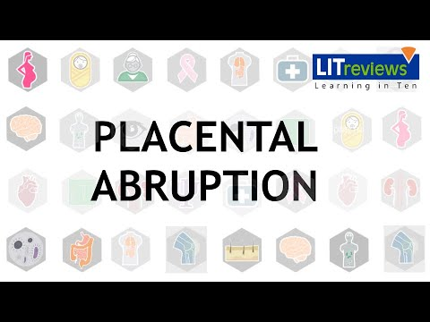 Roller Coasters and Placental Abruption