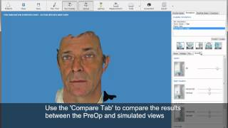 Rhinoplasty (nose job) simulation -nose reshaping results before cosmetic plastic surgery