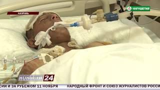 Подросток из Ингушетии получил сильнейшие ожоги.