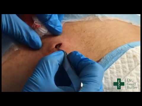 Removal of Epidermal cyst on the Lower Back
