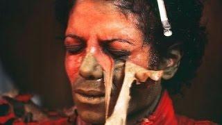 Did Michael Jackson Bleach His Skin