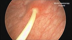 Removal of Double J stent by Cystoscopy