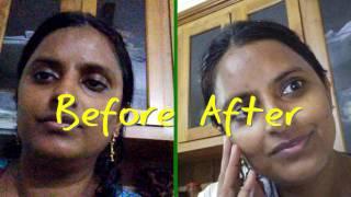 papaya exfoliating mask   #papaya face mask for #acne scars   Indian beauty Secrets