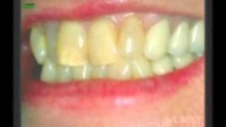 Cosmetic Dentistry, Cosmetic Dentist Whittier CA, Dentistry La Habra CA, Santa Fe Springs CA Thumbnail