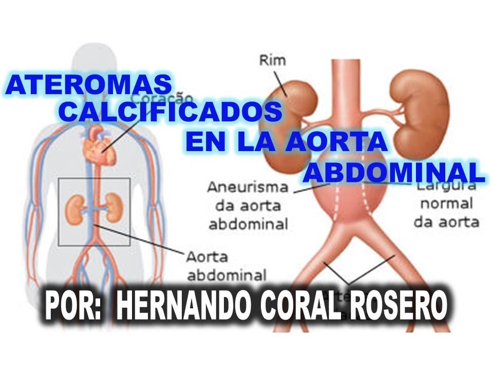 que es una arteria aorta elongada