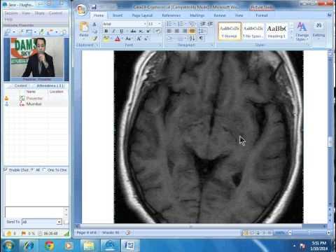 Radiology Spotters Part-4 Cryptococcal Meningitis