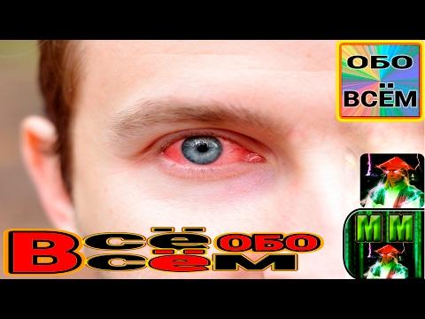 Болят глаза: отчего и что делать, какие капли капать