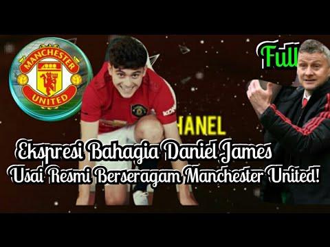 Live:Lihatlah Ekspesi Bahagia James, Usai Resmi Berseragam Manchester United