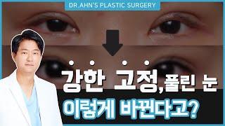 강한 고정, 풀린 눈 실제 #눈재수술 #후기 공개