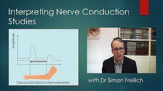 Interpreting Nerve Conduction Studies