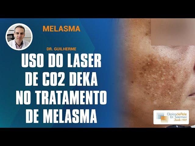 Melasma: Laser de Co2 de pulso frio (Fracionado + Pulsado)