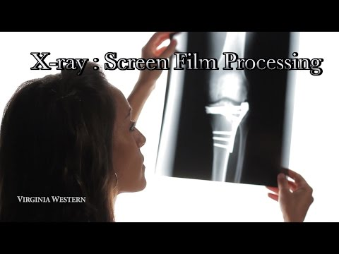 Xray Film Screen Processing