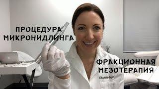 Процедура МИКРОНИДЛИНГА. Обновление кожи. Мастер-клас.