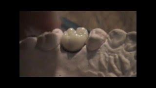 Porcelana Dental.