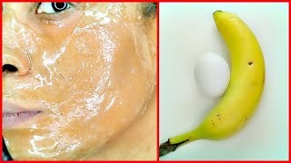 APPLY BANANA AND EGG ON YOUR SKIN ANTI - AGING REDUCE WRINKLES, SPOTLESS FIRM SKIN |Khichi Beauty