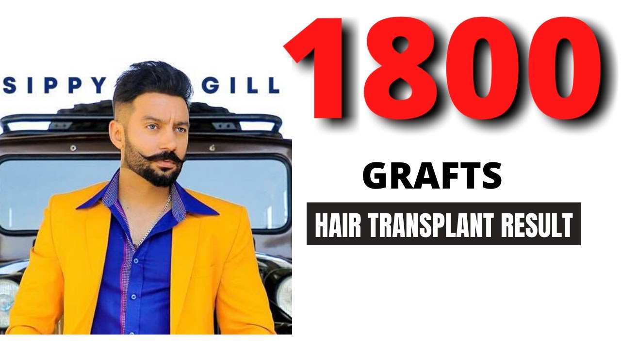 1800 grafts before and after | FUE hair transplant result in india (Chandigarh, Ludhiana)
