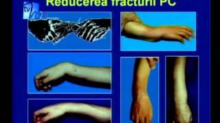 fractura articulatie mana inflamația articulară a încheieturii