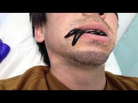 Пиявки во рту ,лечение дёсен .