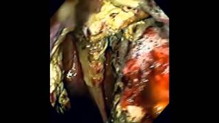 Guttural Pouch Mycosis