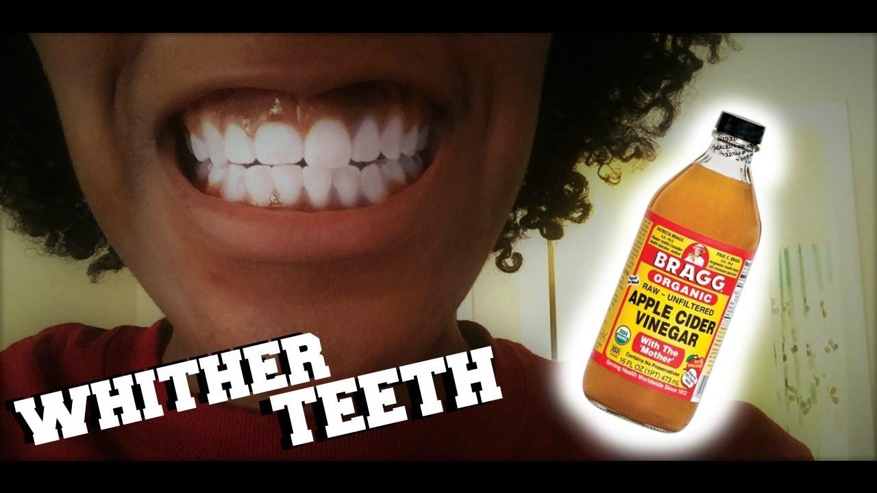 Resultado de imagen para Use Apple Cider Vinegar teeth