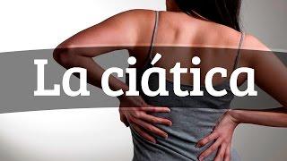 De del ciático nervio los tratamiento síntomas