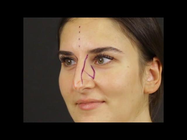 90° tas video   5 months after closed atraumatic rhinoplasty