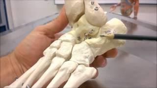 Do redor dos ossos descoloração tornozelo ao