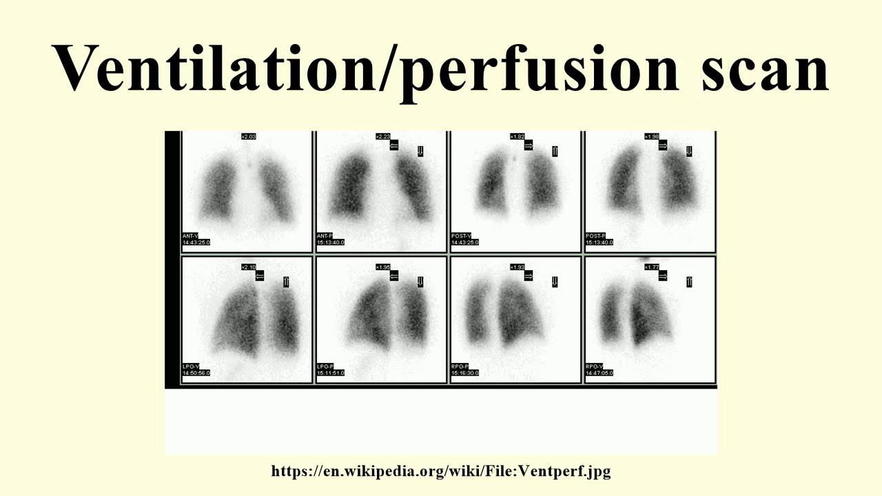 ventilation/perfusion scan - youtube