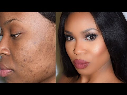 cover scars and dark spots - Highlight and Contour - YouTube