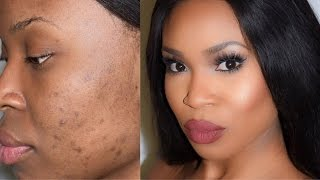 How to cover scars and dark spots - Highlight and Contour
